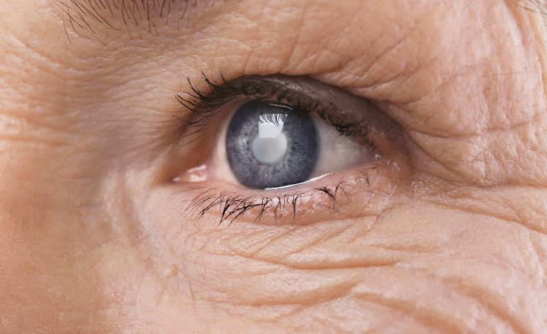 Catarata é responsável por pelo menos 28% dos casos de cegueira no Brasil