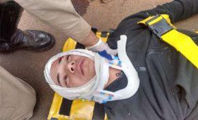 Bandido rouba moto, se envolve em acidente e pode ficar paraplégico